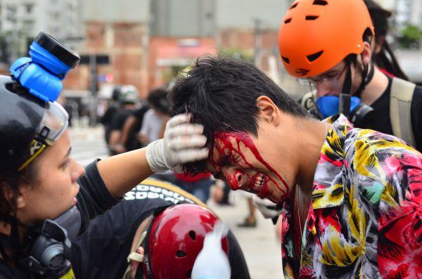 Testa: Manifestante atingido durante ato em São Paulo é atendido por uma colega ainda na rua (Foto: ABr)