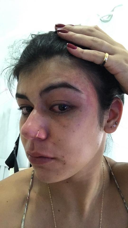Versão: Marianna Amorim divulgou imagens de suposta agressão em uma rede social (Foto: Reprodução Facebook)