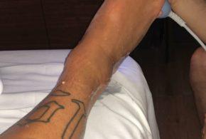Neymar posta foto dando continuidade ao tratamento no pé direito