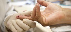 Procura por tratamento contra Aids   preocupa autoridades médicas em BM